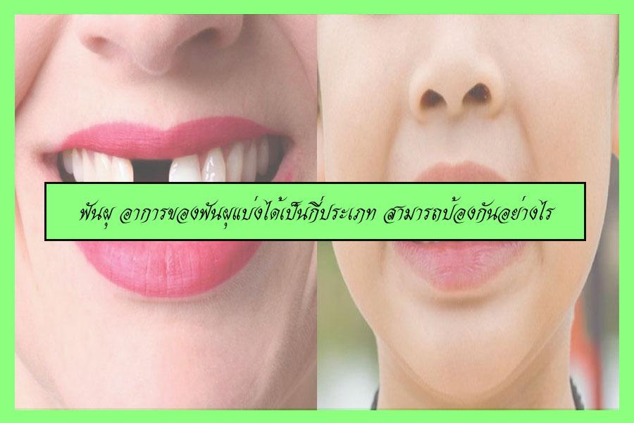ฟันผุ